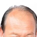 Kreisrunder und diffuser Haarausfall beim Mann