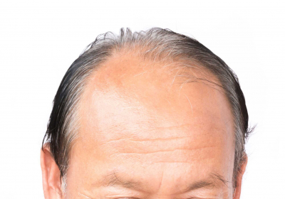 serious-hair-loss-problem