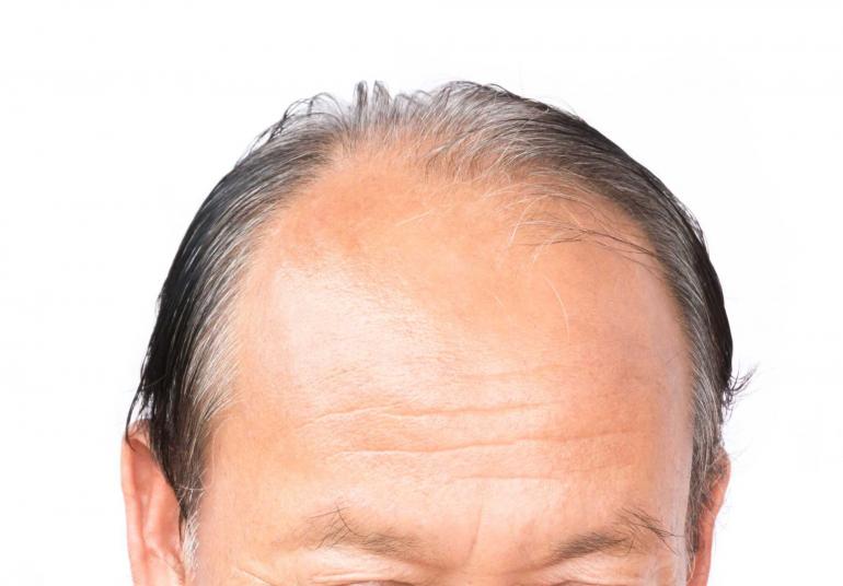 serious-hair-loss-problem